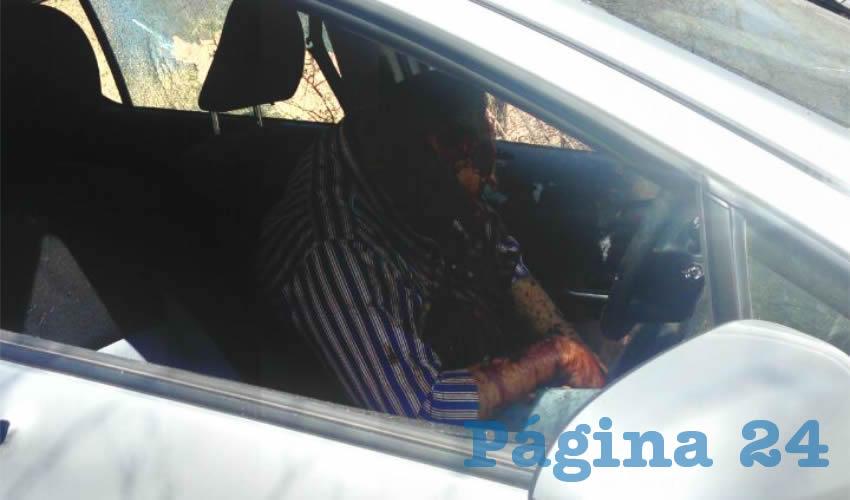 El rostro del alcalde en licencia quedó destrozado por las balas/Fotos: Especial